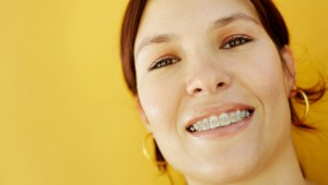 Braces For Adults: Easy Guide To Adult Orthodontics