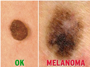 What You Need To Know About Melanoma