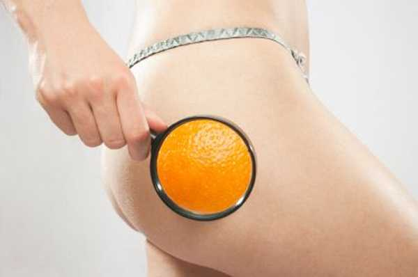 Natural and Fast Ways To Rid Cellulite For Women Over 30